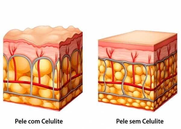 reducao grau celulite colageno